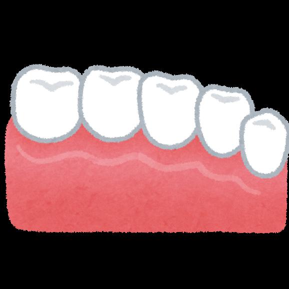 teeth_ceramic (1)